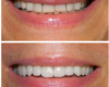 Invisalign, Porcelain Ceramic Crowns, Smile Makeover, Full Mouth Reconstruction - Newtown PA Dentist Nicole Armour DMD
