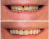 All-on-Four Implants, Fixed Implant Bridge - Newtown PA Dentist Nicole Armour DMD