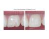 Emergency Dental Repair, Resin Bonding - Newtown PA Dentist Nicole Armour DMD