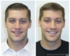 Whitening, Porcelain Crowns and Bonding - Newtown PA Dentist Nicole Armour DMD
