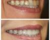 Whitening, Porcelain Crowns, Bridge, Smile Makeover - Newtown PA Dentist Nicole Armour DMD