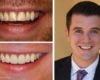 Conservative smile makeovers - Zoom! whitening, crowns, bonding restoration