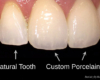 Conservative smile makeovers - teeth shading