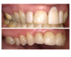 Five crowns after gum graft