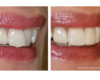 Before and 1 hour after: Resin bonded veneers