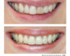Armour Dentistry - Matching single central tooth