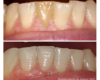 Armour Dentistry - Restoration of dark (necrotic and root canal treated) tooth.