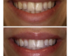 Armour Dentistry - Zoom Whitening, in-office treatment.
