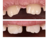 Armour Dentistry - Emergency repair of child's chipped tooth