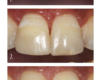 Armour Dentistry - Matching unique characteristics of adjacent natural tooth with added challenge of unilateral crossbite.