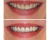 Veneers for Tetracycline stained teeth - Newtown Dentist Nicole M Armour, DMD