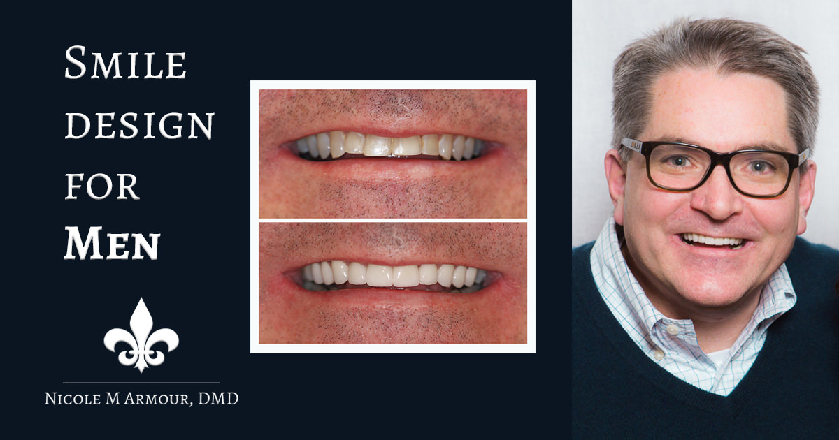 Smile Design for Men - Armour Dentistry of Newtown