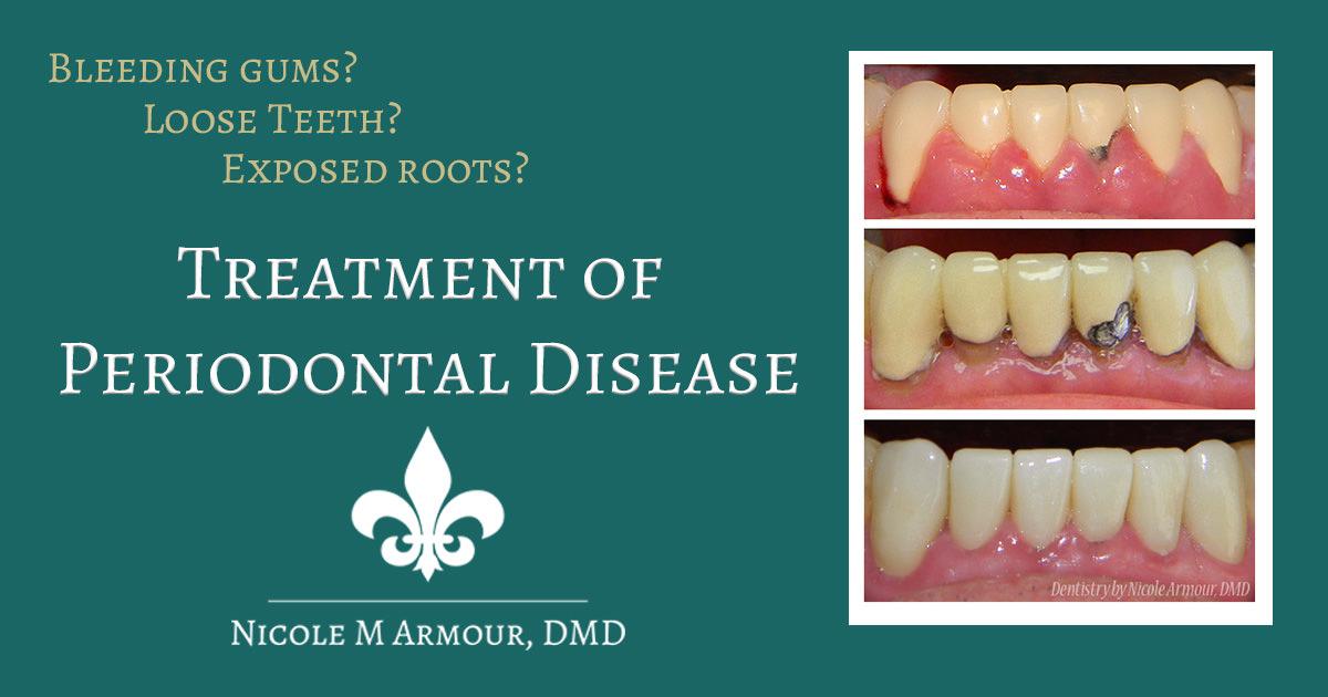 Understanding Periodontal Disease - Armour Dentistry of Newtown